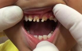 Сладкая газировка с заменителями сахара вредная для зубов