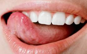 Трехмерная модель языка поможет восстановить речь после инсульта
