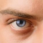 Знахарские рецепты лечения глаукомы