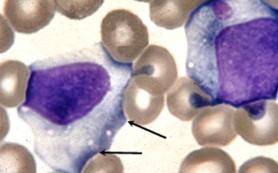 Инфекционный мононуклеоз (mononucleosis infectiosa). Клиническая картина. Лечение. Профилактика.