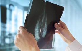 Маммография и УЗИ выявляют рак молочной железы одинаково эффективно