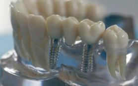 Восстановить потерянные зубы поможет имплантация