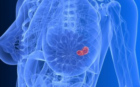 Рак молочной железы — симптомы, диагностика и лечение