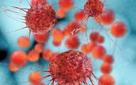 Обнаружен еще один ген, связанный с риском развития рака яичников