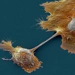 Обнаружен простой способ лечения рака поджелудочной