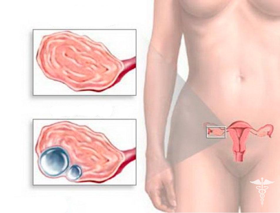 методом боли в области правого яичника в период овуляции после секса свою