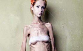 Гены, стресс и диета приводят к анорексии