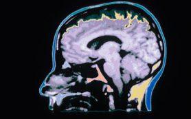 Нейробиологи раскрыли тайну алкоголизма