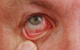 """Синдром """"сухого глаза""""? Хватит это терпеть!"""