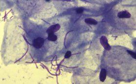 Повышение лейкоцитов в мазке может привести к бесплодию