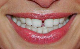 Названы самые вредные напитки для зубов