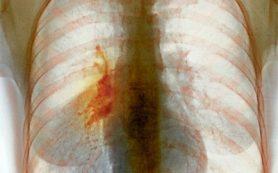 90% больных раком легких — курильщики, показало исследование
