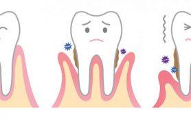 Пародонтит может привести к потере зубов