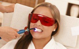 Белоснежной улыбки можно добиться с помощью профессионального отбеливания зубов