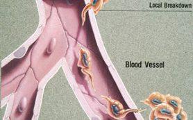 Ученые проследили эволюцию клеток летального метастатического рака простаты