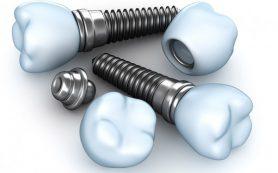 Имплантаты компании ADIN обладают хорошей биосовместимостью с костной тканью челюстей