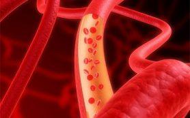 Тестостероновая терапия провоцирует развитие тромбов