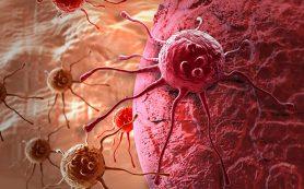 Заболеваемость раком увеличилась на 33% за 10 лет