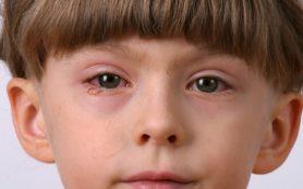 Отсутствие лечения аллергического блефарита может привести к ухудшению зрения