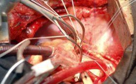 Медики использовали стволовые клетки для регенерации сердца