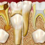 Стоматологические заболевания: молочные зубы - основные болезни