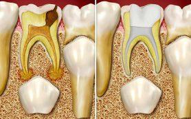 Стоматологические заболевания: молочные зубы — основные болезни