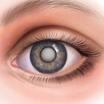 Вылечить катаракту можно только оперативным путем