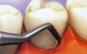 Хлоргексидин в стоматологии