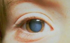 Риск развития катаракты связан со статинами