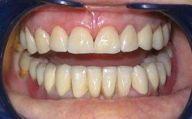 Зубные коронки и мостовидные протезы – особенности, достоинства и недостатки