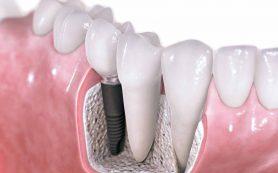Зубные имплантаты – в мире мода на естественность