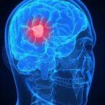 Опухоль мозга – не приговор. Технологии на службе у нейрохирургов