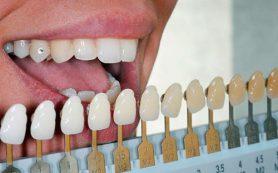 Виниры на зубы и их виды