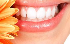 Зубные камни — почему они появляются и как их удалить?