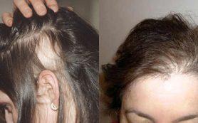 Причины выпадения волос на голове у женщин