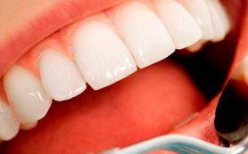 Что такое виниры — плюсы и минусы винирования зубов