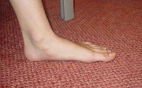 Плоскостопие: чем чревата эта болезнь?