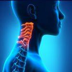 Шейный спондилез: лечение натуральными средствами