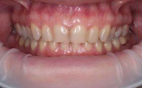 Если вам поставили имплантат зуба, необходимо знать признаки его отторжения