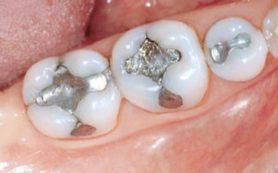 Почему болят зубы после установки новой пломбы