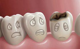 Стоматологи назвали тревожные признаки кариеса