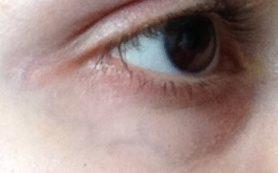 Как убрать вены под глазами