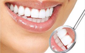 Привычки, которые вредят здоровью зубов