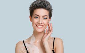 Витилиго – белое пятно в медицине