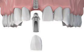 Композитные прямые виниры на зубы