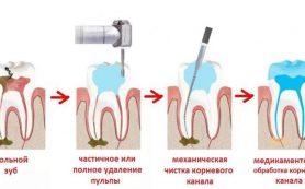 Лечение пульпита зуба, методы и этапы