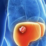 Злокачественная опухоль печени - виды, симптомы, диагностика, лечение и прогнозы