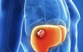 Злокачественная опухоль печени — виды, симптомы, диагностика, лечение и прогнозы