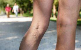 7 основных причин боли в ногах