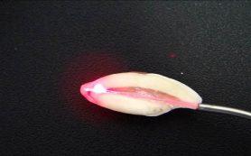 Как лазерная обработка корневых каналов влияет на прочность сцепления штифта?